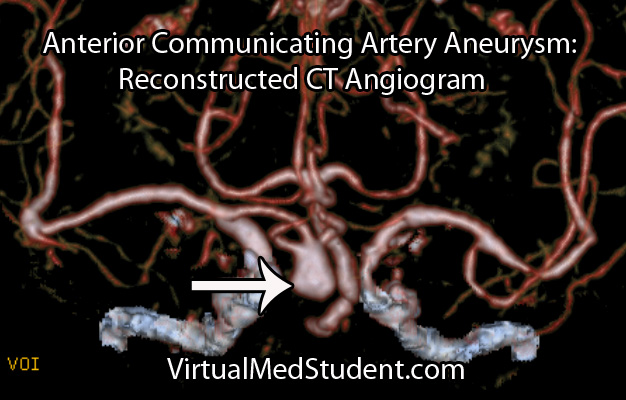 Anterior Communicating Artery Aneurysm CT Angiogram