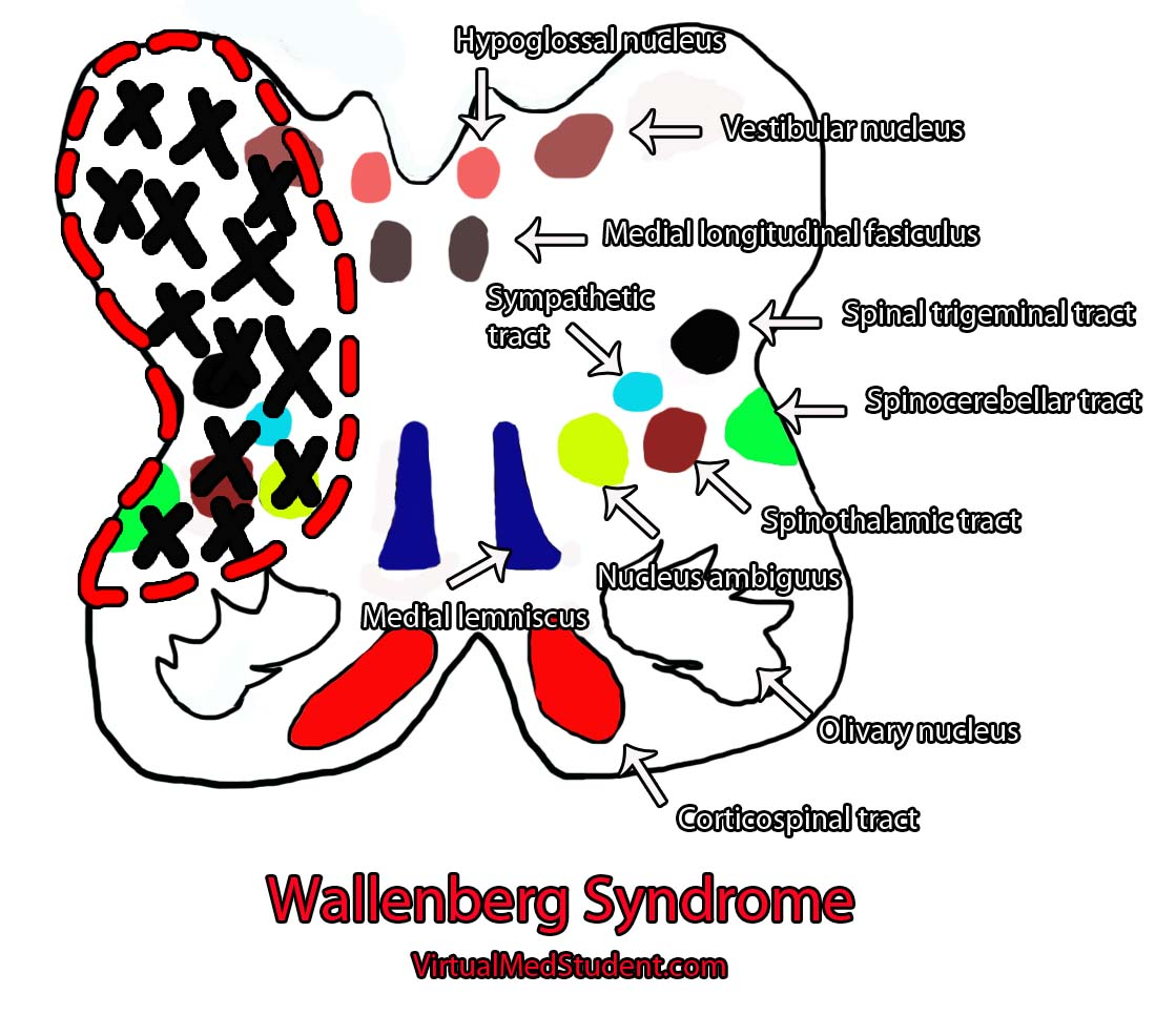 Wallenberg Syndrome