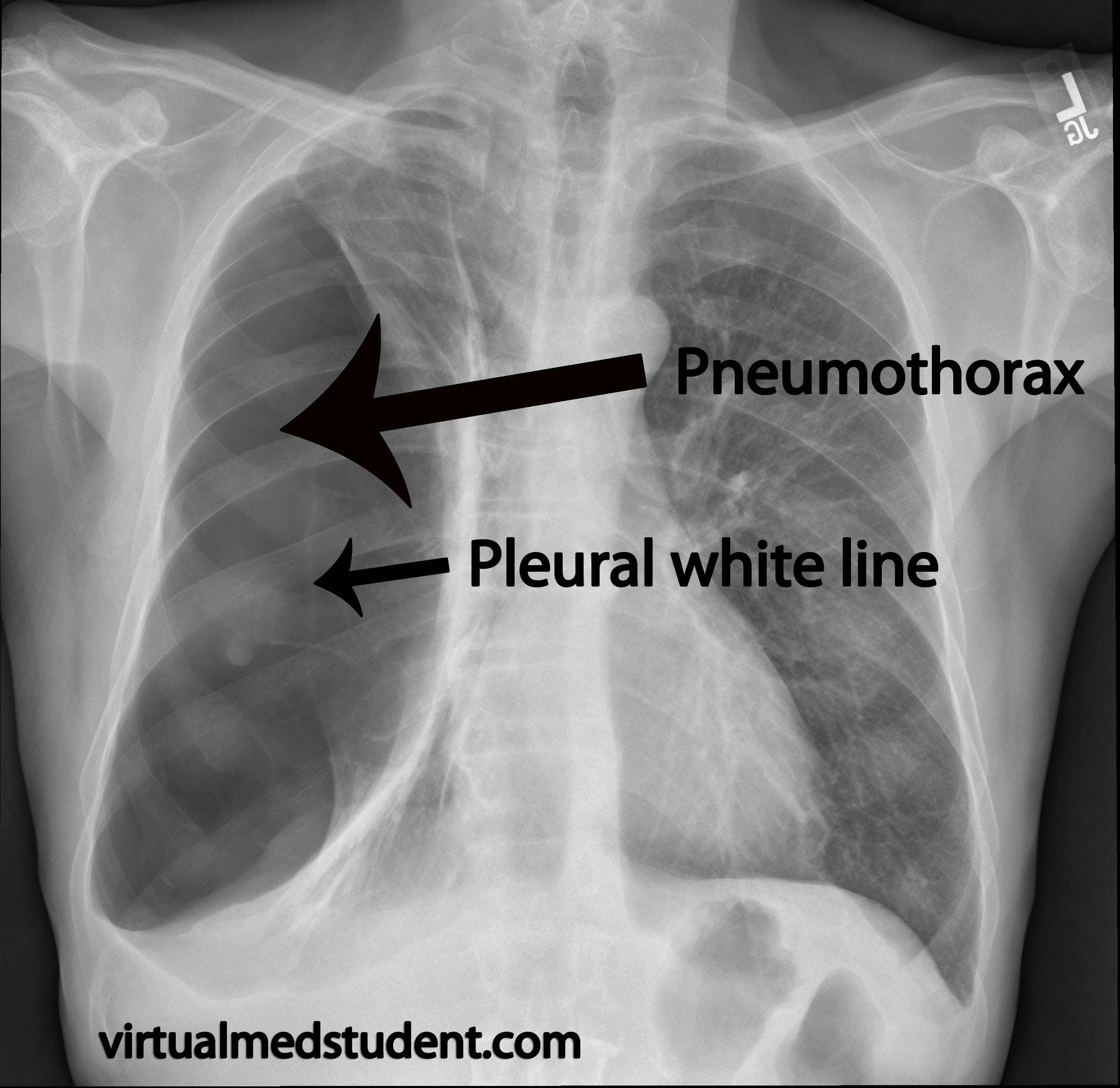 Virtualmedstudent Com Pneumothorax